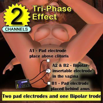 Image showing a basic tri-phase electrode configuration for vagina owners