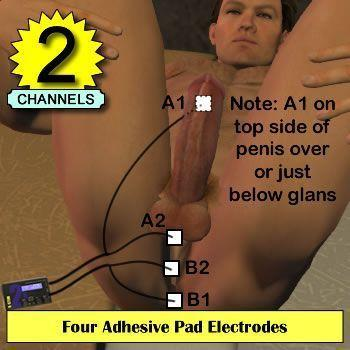 Four Adhesive Pad Electrodes, Glans, Balls and Bum cheeks and perineum