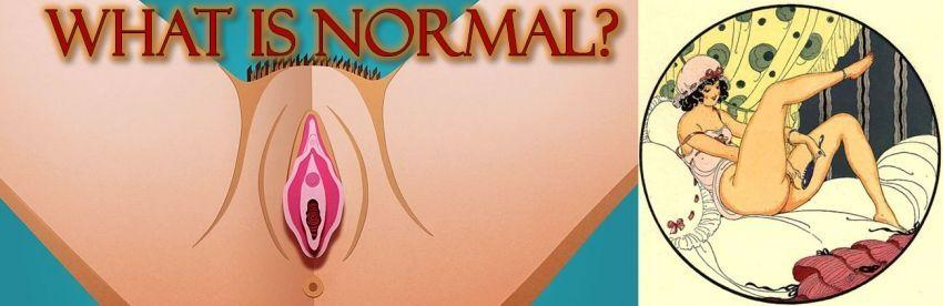 Is My Pussy, (Vulva And Vagina) Normaal?